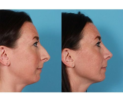 5_What_Is_Rhinoplasty