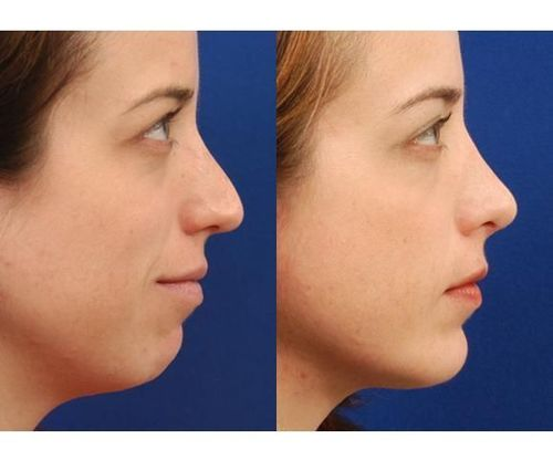 18_What_Is_Rhinoplasty