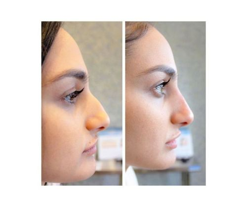 16_What_Is_Rhinoplasty