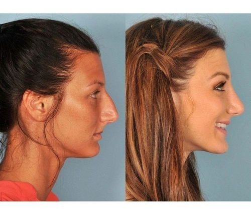 17_What_Is_Rhinoplasty