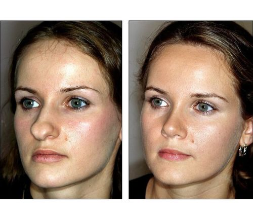 6_What_Is_Rhinoplasty