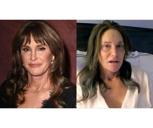 35_Celebrities_Without_Makeup