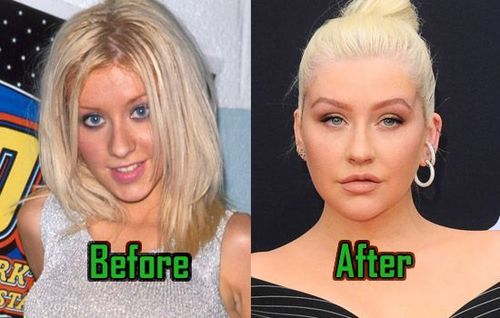 Christina-Aguilera-Plastic-Surgery_before_after