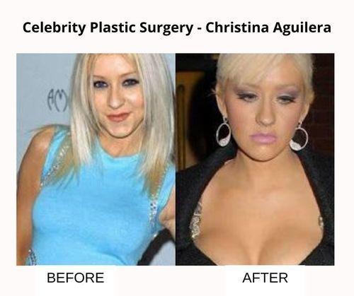 Christina_Aguilera_plastic_surgery_details