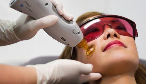laser facial treatment3