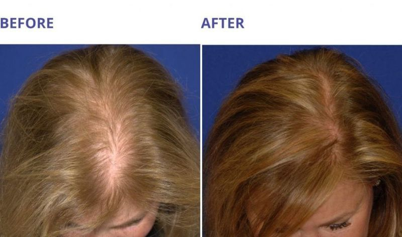 Platelet Rich Plasma Hair Therapy
