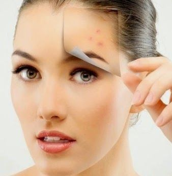 4- Reduces Acne marks