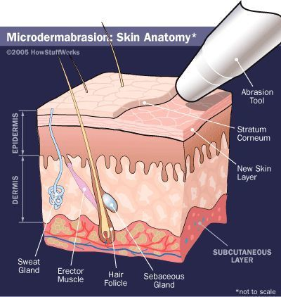 microdermabrasion_how_it_works
