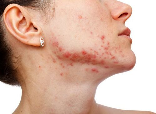 Cystic Acne-