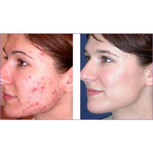 Cystic-Acne-before -and-after