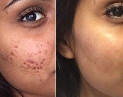 Cystic Acne before and after