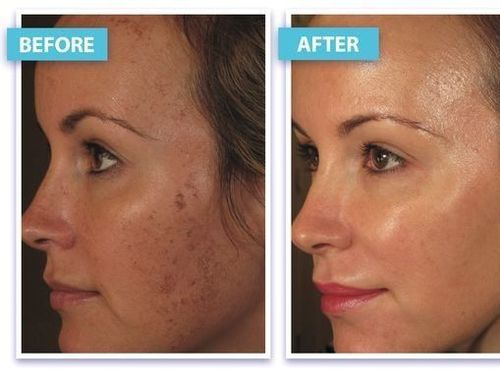 laser-skin-tightening-before-and-after-results
