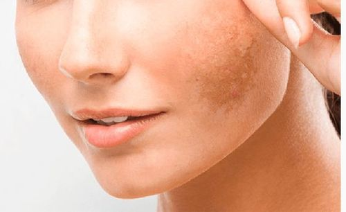 Hyperpigmentation-guide-types-causes-and-treatments