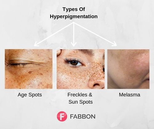 Hyperpigmentation-types