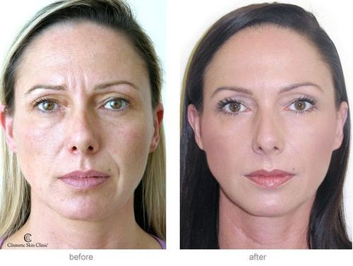 Dermal-fillers-before-and-after-2