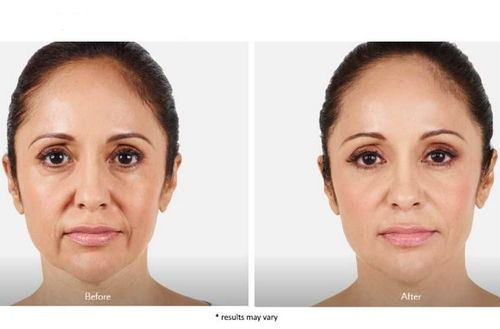 Dermal-fillers-before-and-after-