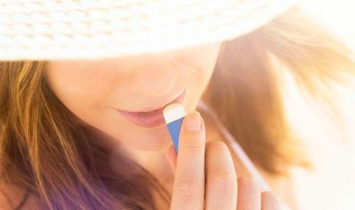 Sunburned-lips-products