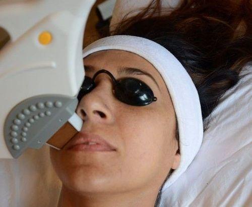 freckles-laser-removal
