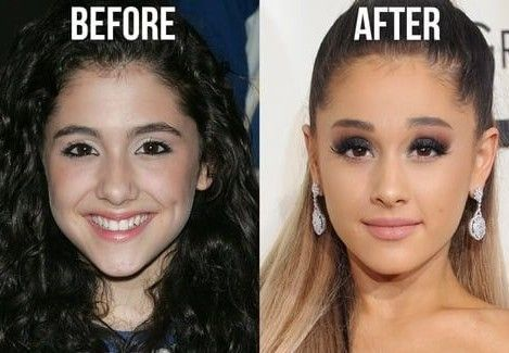 Ariana-Grande-eyebrow-lift
