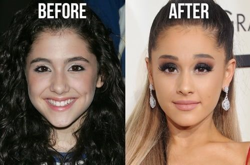 51 Most Popular Celebrity Nose Jobs Before And After With Images