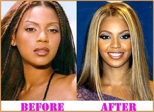Beyonce-nose-job