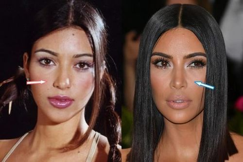 Kim-kardashian-nose-job-