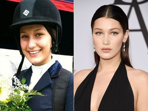 Bella-hadid-nose-job-