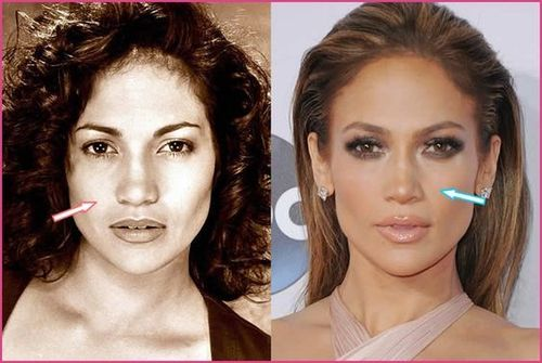 jennifer-lopez-nose-job