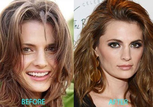 Stana-Katic-nose-job