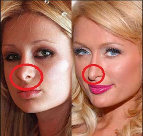 Paris-hilton-nose-job