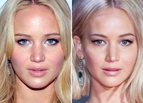51 Most Popular Celebrity Nose Jobs: Before And After With
