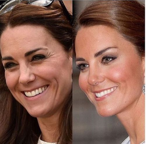 Kate-middleton-nose-job