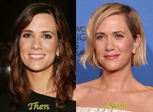 Kristen Wiig Nose Job