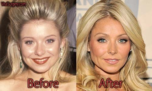 Kelly Ripa Nose Job