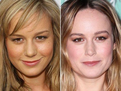 Brie Larson Nose Job