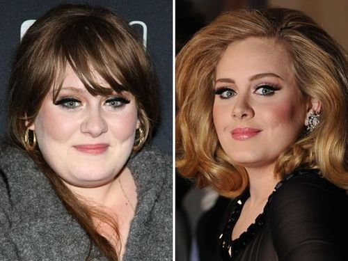 Adele-nose-job