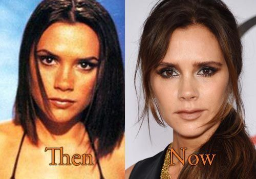 Victoria-Beckham-nose-job