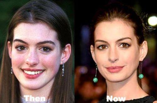 Anne-Hathaway-nose-job