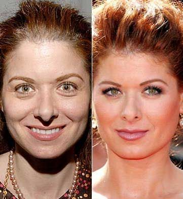 Debra Messing Nose Job