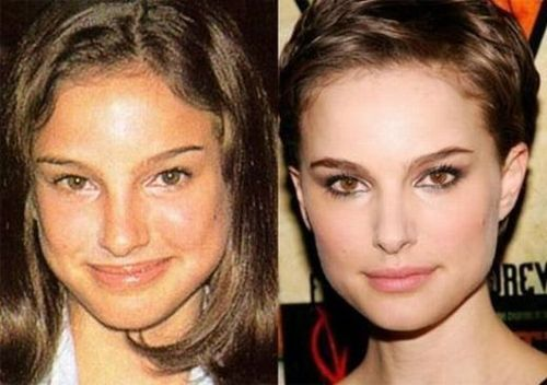 Natalie-portman-nose-job