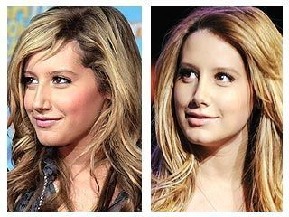 Ashley-Tisdale-nose-job