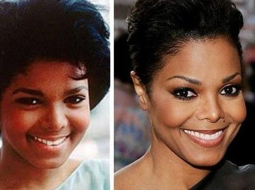 Janet-jackson-nose-job-