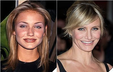 Cameron-diaz-nose-job-