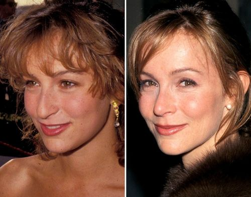 Jennifer-Grey-nose-job-
