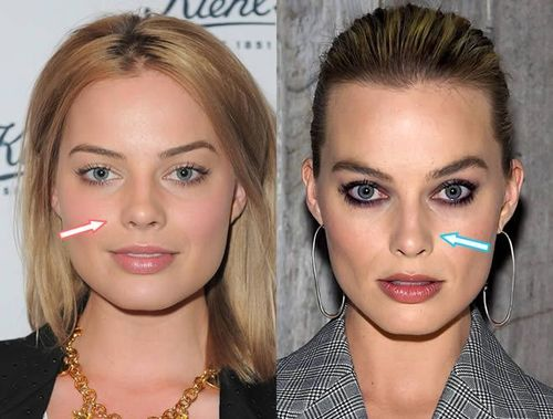 margot-robbie-nose-job