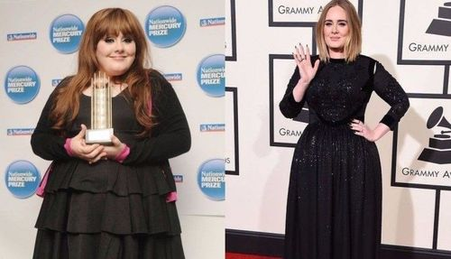 Adele weight loss and surgery