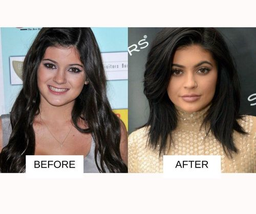 Kylie jenner lip job