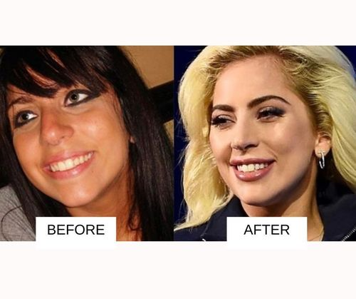 Lady Gaga lip job