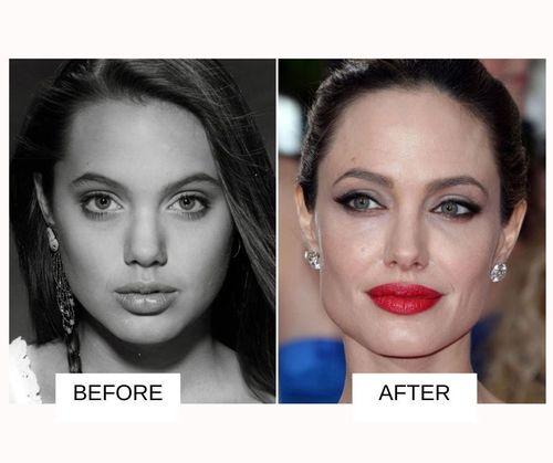 Anjelina Jolie lip job