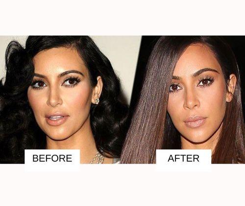 Kim Kardashian lip job